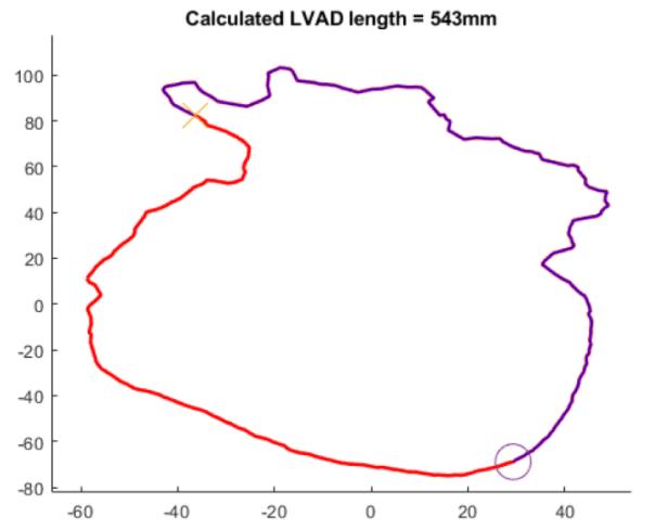 Algorithm to improve left ventricular assist device implantation