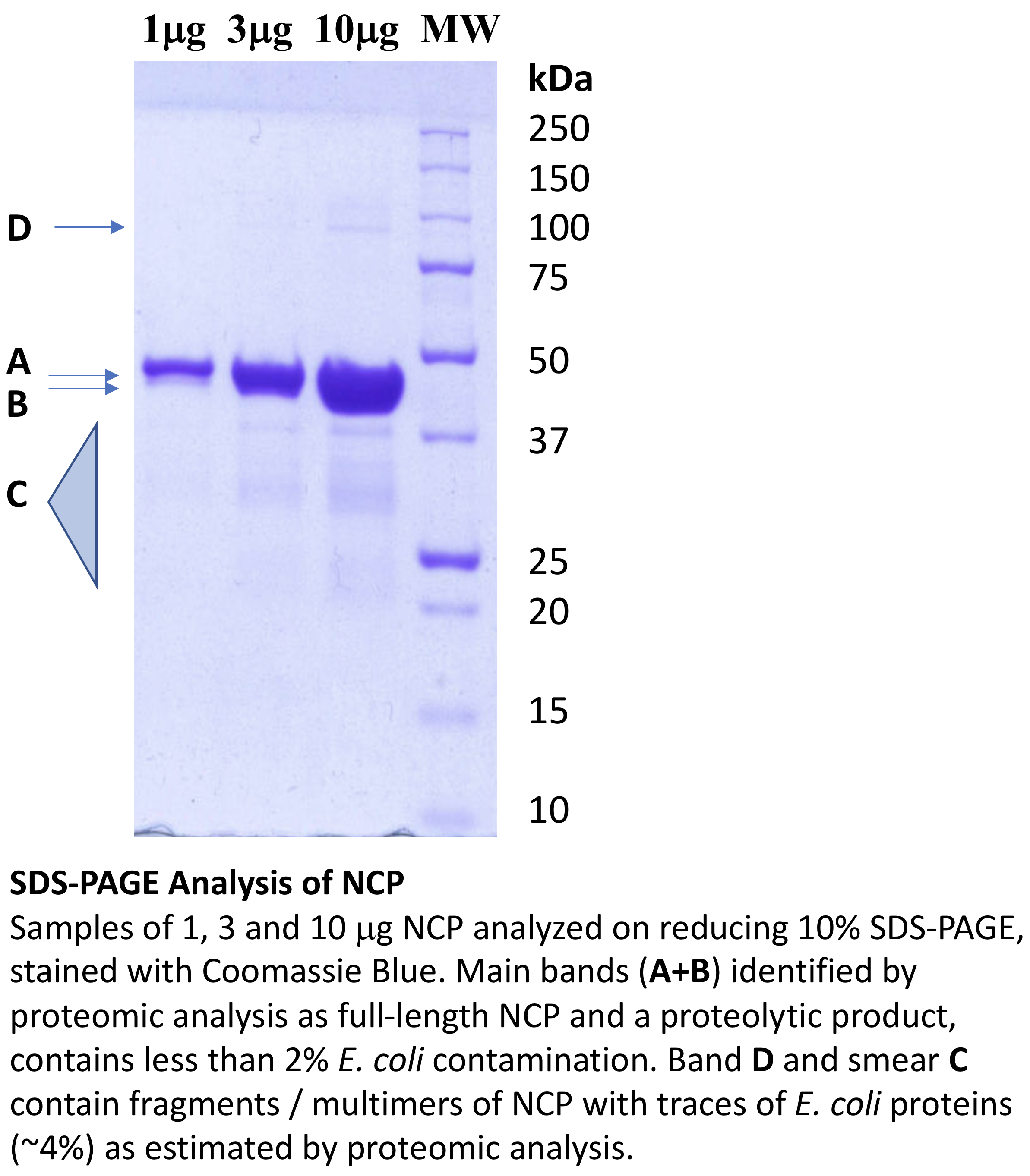 SDS-Page Analysis of NCP