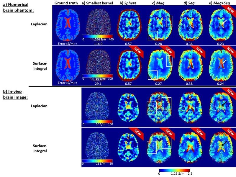 MRI Conductivity
