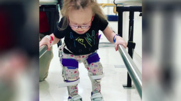 girl-with-dwarfism-walks