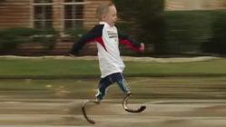 Cody-McCasland-no-legs