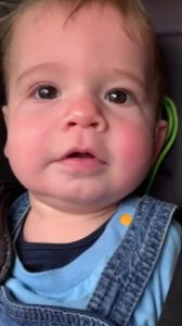 Deaf-Baby-Hears-First-Time
