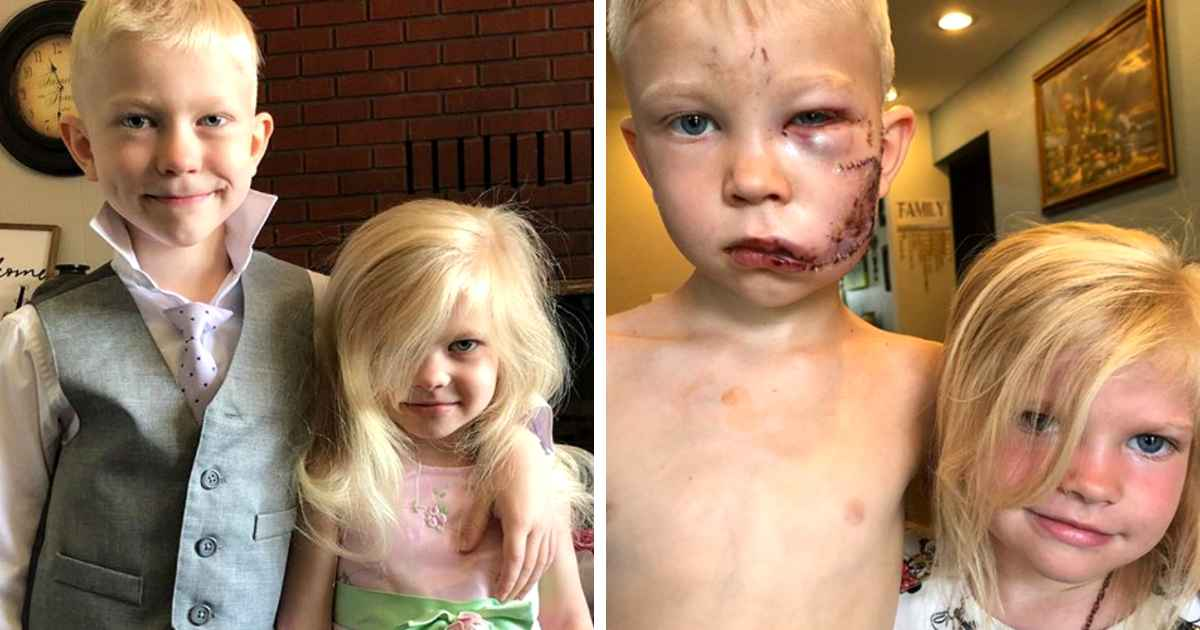 boy-saves-sister-from-dog-attack-bridger-walker