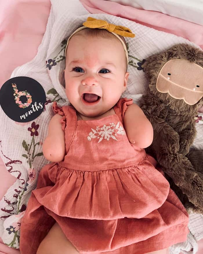 baby-born-without-hands-ivy-jane-7