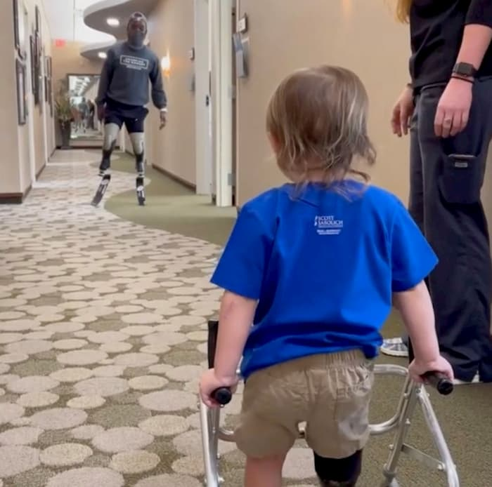 toddler-with-prosthetic-legs-walks-with-blake-leeper-2