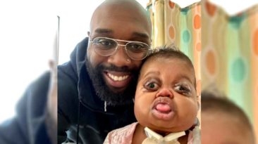 dad-writes-letters-to-baby-with-pfeiffer-syndrome