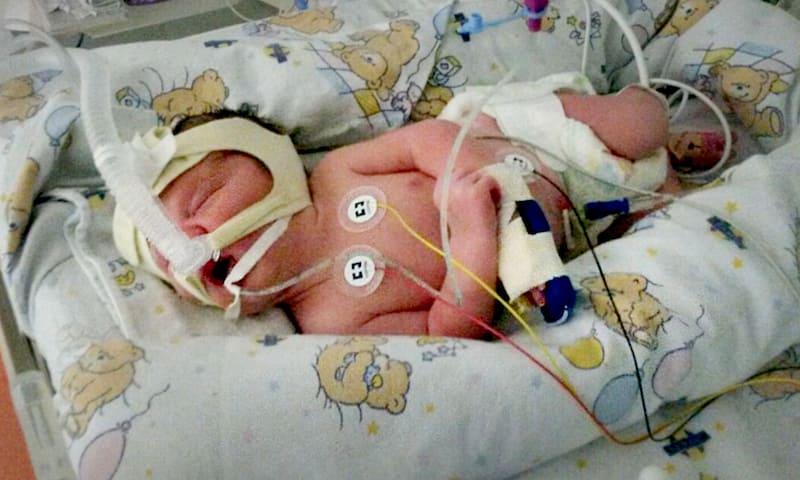 spina-bifida-ultrasound