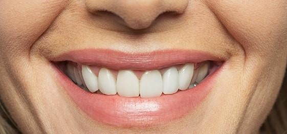 Cheap Dentures Repton AL 36475 | Five Star Dental