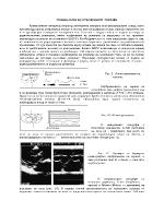 Основна схема на ултразвуковите ехографи
