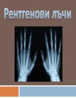 Рентгенови лъчи