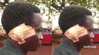 Man bites off friend's ear in a brawl over weed soup