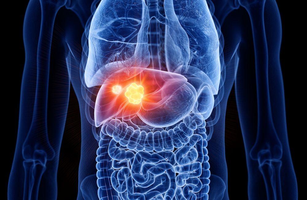 Dieta przyjazna dla chorej wątroby - podstawowe reguły żywieniowe oraz produkty zalecane i niewskazane
