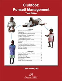 Clubfoot: Ponseti Management