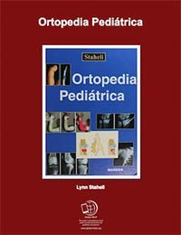 Ortopedia Pediatrica