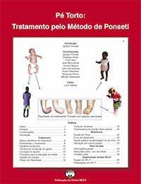 Pe Torto: Tratamento Pelo Método De Ponseti