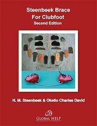 Steenbeek Brace For Clubfoot