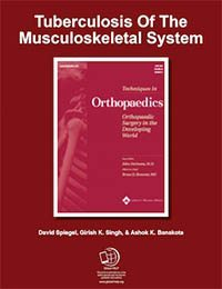 Tuberculosis Of The Musculoskeletal System