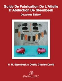 Guide De Fabrication De L'Atelle D'Abuction De Steenbeek