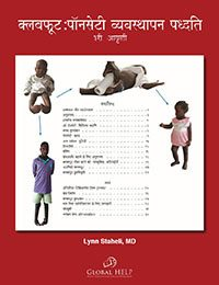 Clubfoot: Ponseti Management [Hindi]