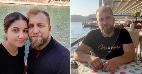 國外一名男子死於毛髮移植手術。(圖/取自Twitter@sharonkgilbert)