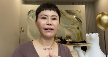 詹雅雯罹患帕金森氏症,導致左腦中度萎縮,且因為服藥造成她嚴重落髮。(圖/翻攝詹雅雯臉書)