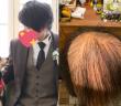 男網友打完莫德納禿了。(圖/翻攝自推特いるしげ)
