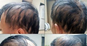 南韓一名男子打完莫德納後變成禿頭。(圖/翻攝自Twitter@netcosas)