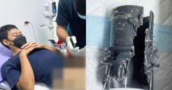 男子在做完下體增大手術後,竟異想天開地用水管自慰。(合成圖/ViralPress)
