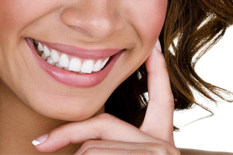 lindsay giguiere, smiles for miles, teeth whitening kit