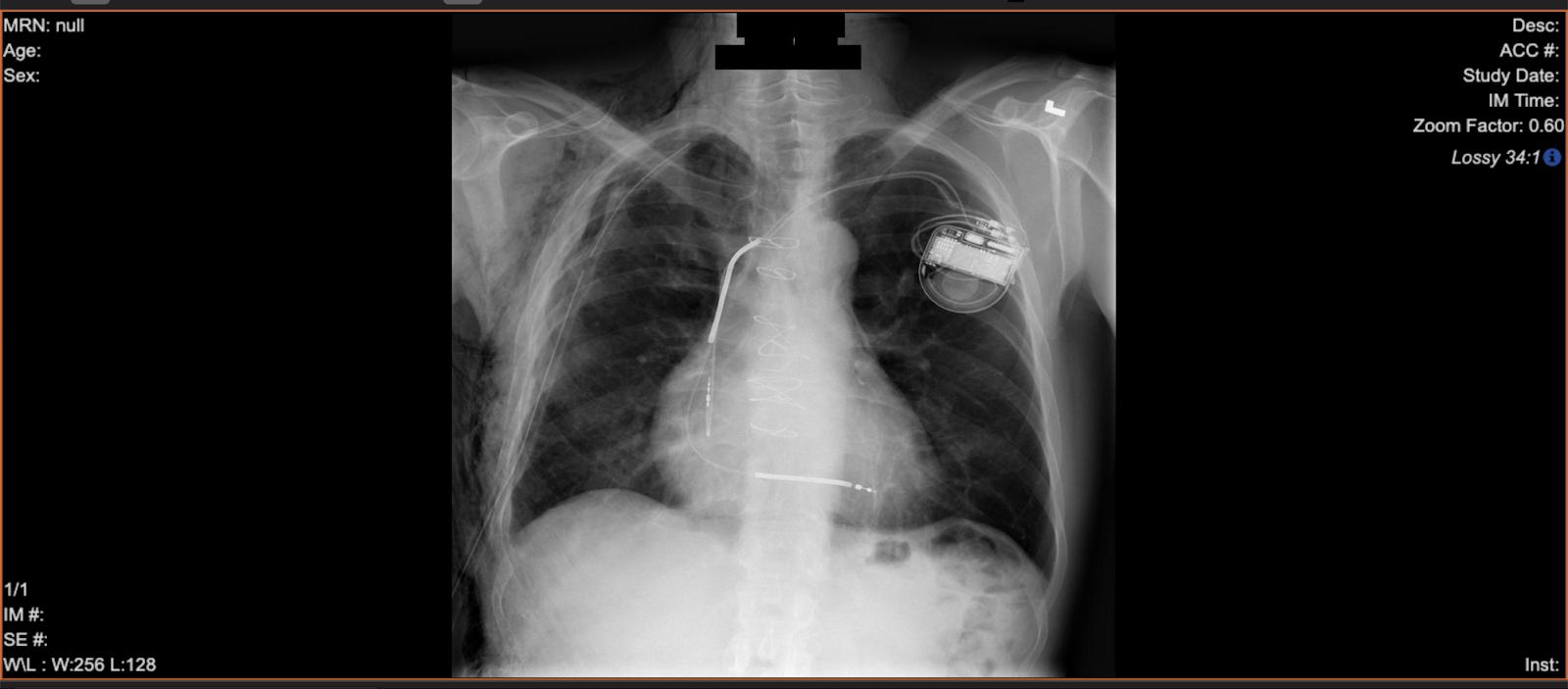 x-ray de-identification.png