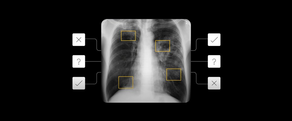AI detects tuberculosis on chest x-rays. Image used with permission from National Library of Medicine, PubMed ID 25525580.