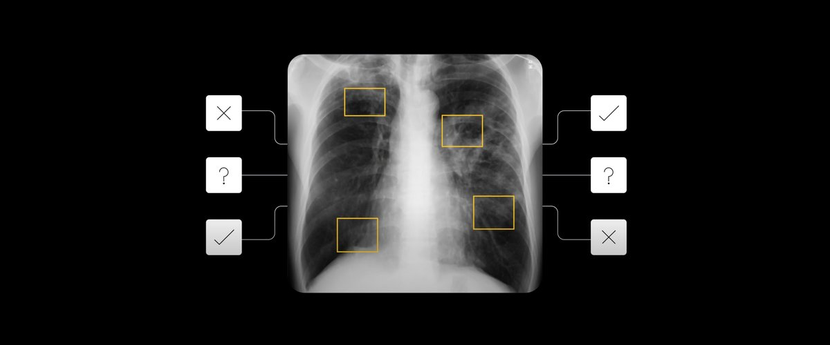 Tuberculosis chest x-ray