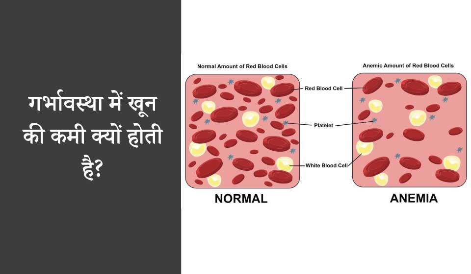 गर्भावस्था में खून की कमी क्यों होती है? (garbhavastha me khoon ki kami kyun hoti hai?)