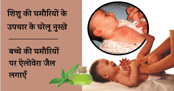 Baby heat rash home remedies - aloe vera gel