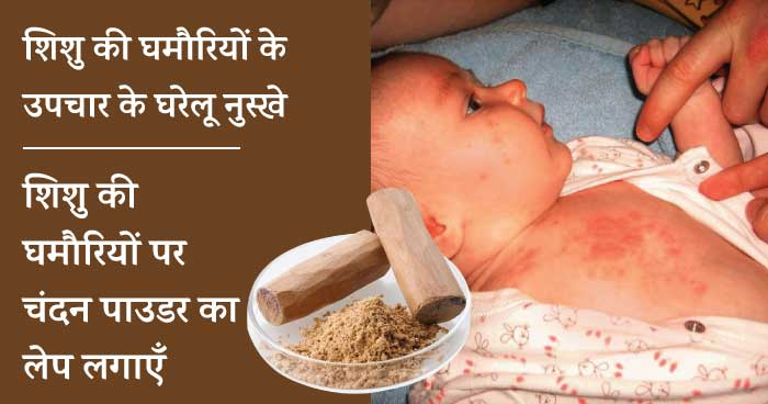 Baby heat rash home remedies - chandan