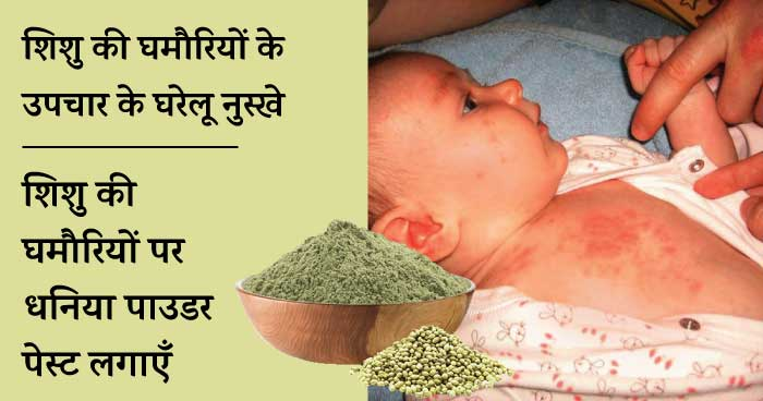 Baby heat rash home remedies - dhaniya powder