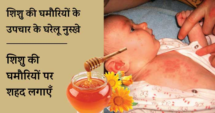 Baby heat rash home remedies - shahad