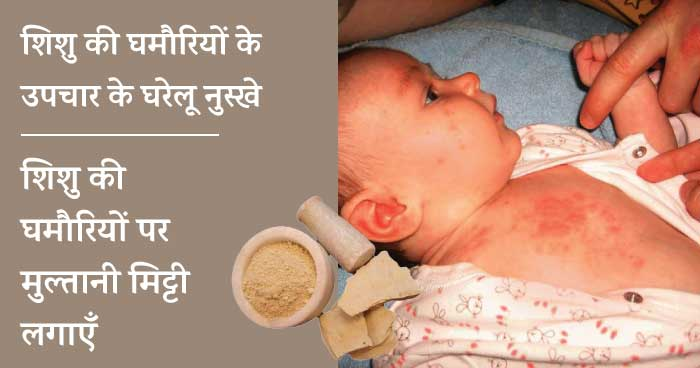 Baby heat rash home remedies - multani mitti