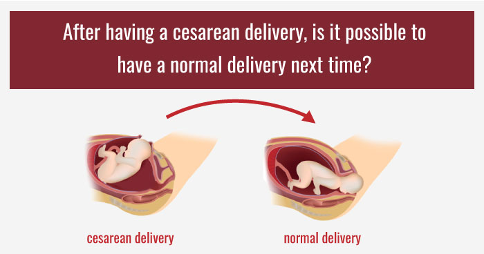 normal delivery after having a cesarean delivery