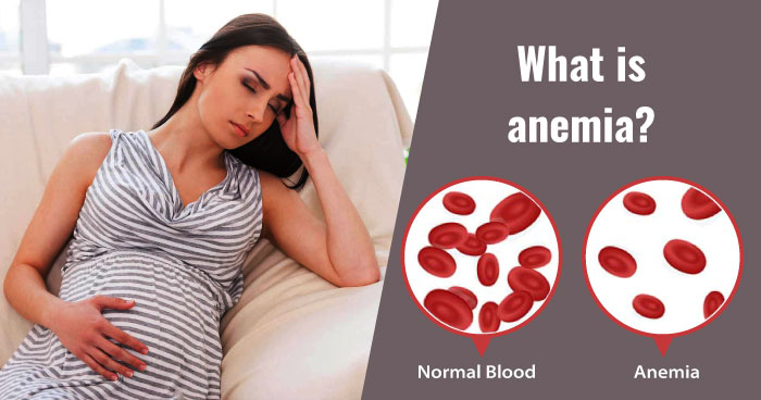 What is anemia