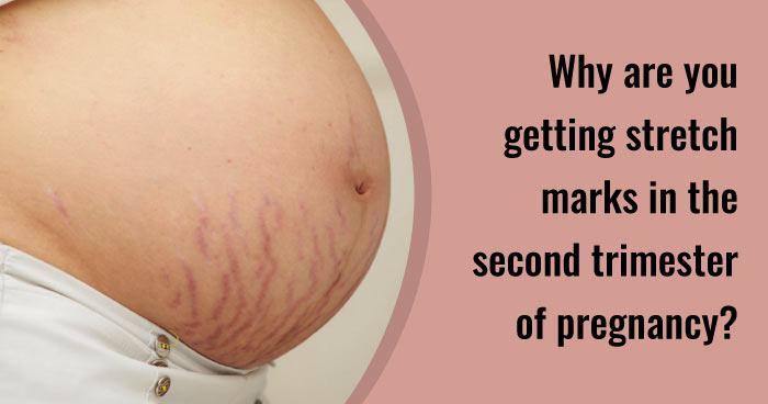 Second trimester tips - stretch marks