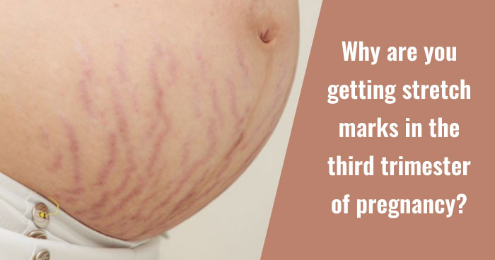 Third trimester tips - stretch marks