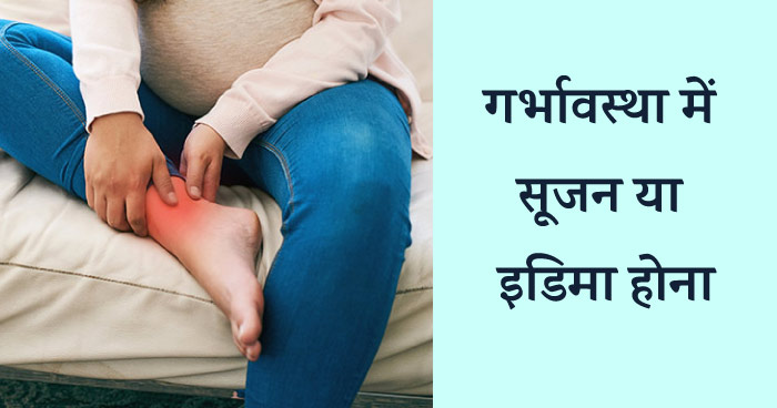 गर्भावस्था में सूजन या इडिमा होना (swelling during pregnancy in hindi)