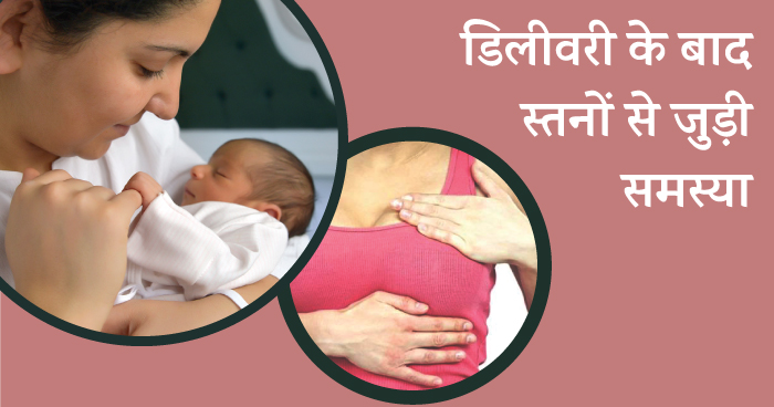 Problems after delivery in hindi - breast problem