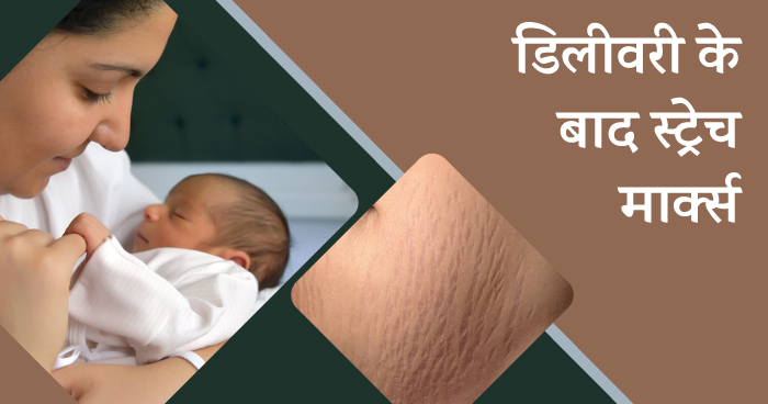 Problems after delivery in hindi - stretch marks