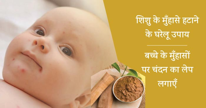 baby acne home remedies chandan
