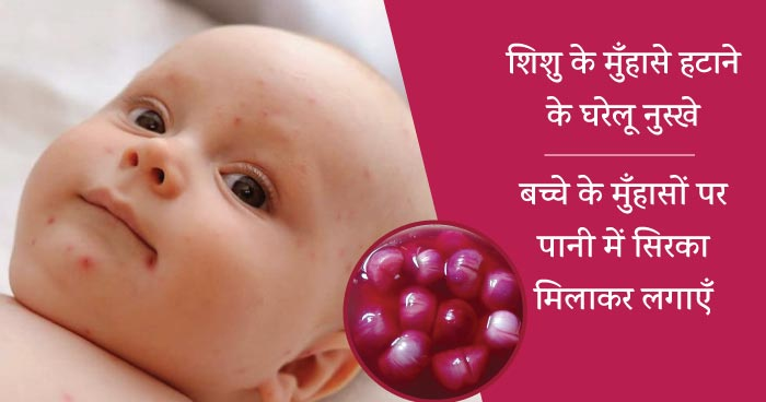 baby acne home remedies sirka