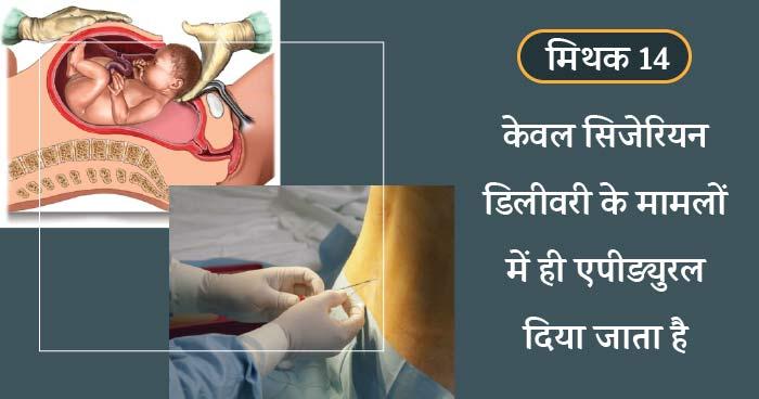 cesarean delivery me epidural