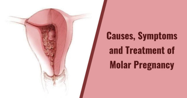 Causes, Symptoms and Treatment of Molar Pregnancy