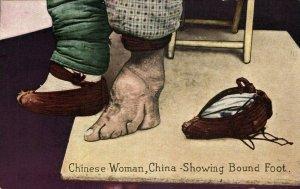 china, Chinese Woman showing Bound Foot Binding (1930s) Postcard